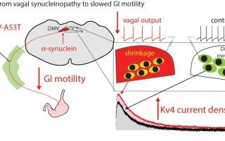 מודל להאטה של מערכת העיכול בעקבות ביטוי של חלבון אלפא-סינוקלאין בגזע המוח. קרדיט - באדיבות החוקרים